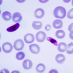 Thrombocyte Counts in Malaria Patients at East Kalimantan